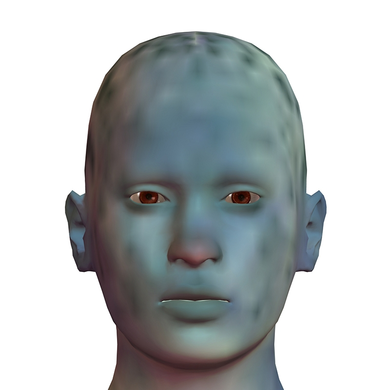 Skin in this condition becomes blue in colour