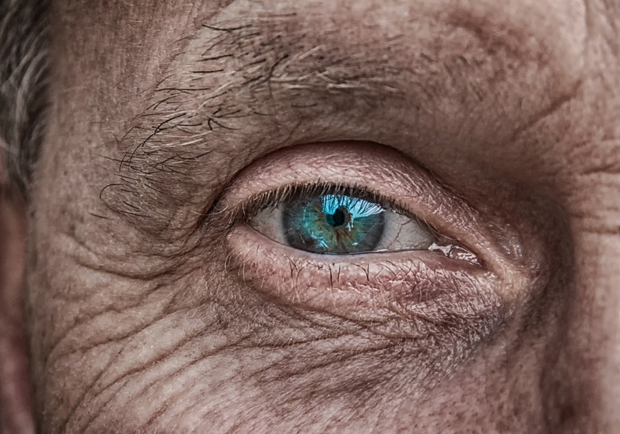 Age related changes of eyelids, benefit from Blepharoplasty