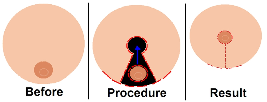 Diagram showing procedure of  Breast reduction surgery.