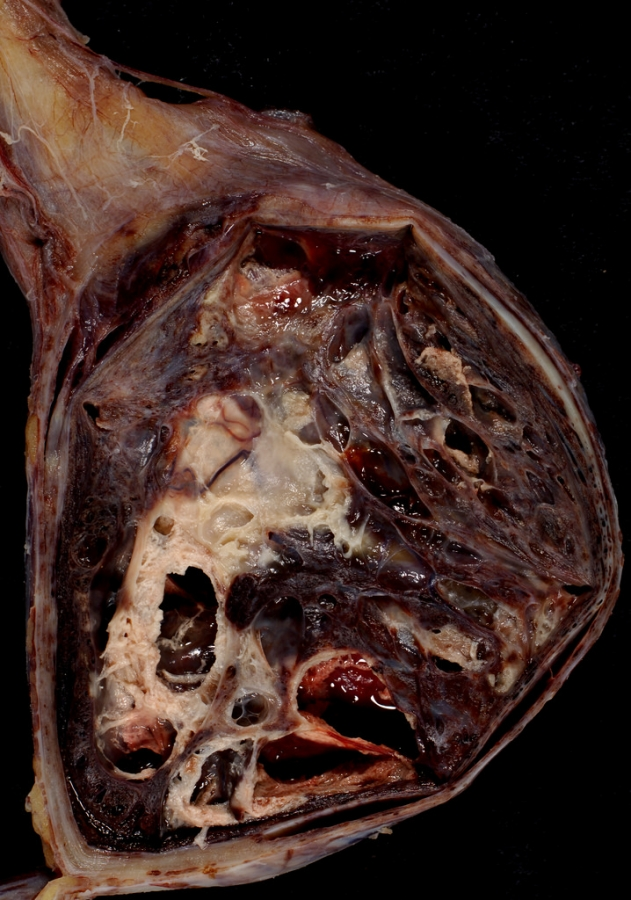 Mixed Germ Cell Tumour of Testis can cause Gynaecomastia