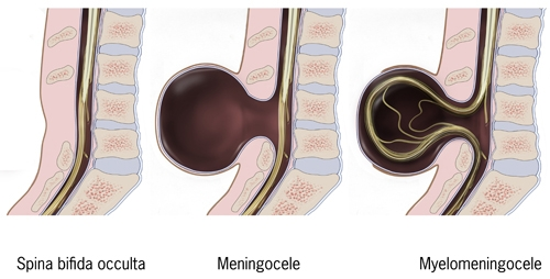 Diagramatic representation of Myelomeningocele