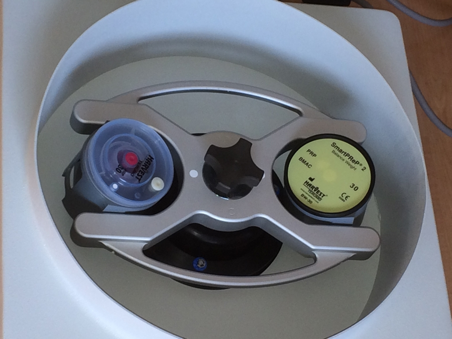 Centrifuge machine to prepare  PRP