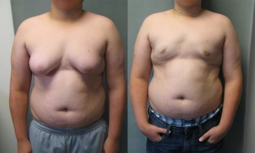Gynecomasta - Before and after treatment images