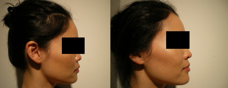 Effect of filler injection in Nose
