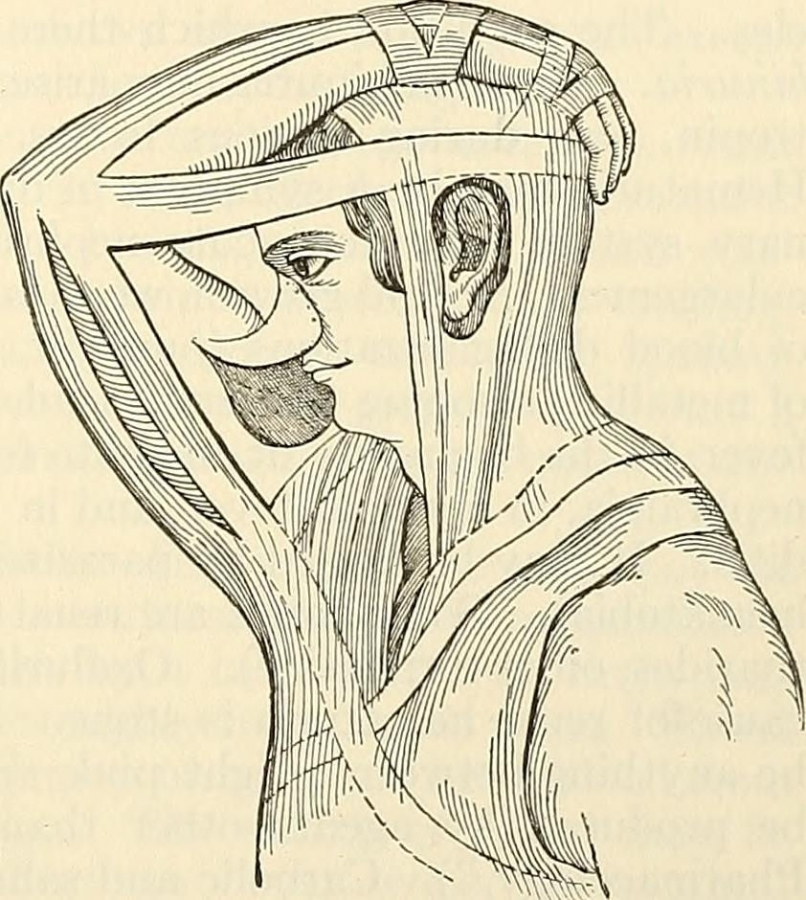 Italian method of Rhinoplasty