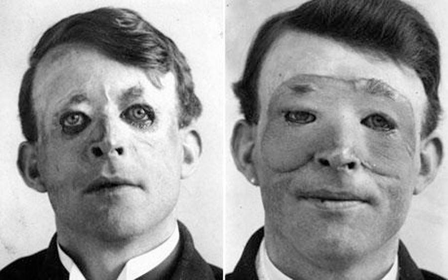 Walter Yeo, first person to receive Plastic Surgery in modern times in 1917, thus giving birth to a new academic subject.