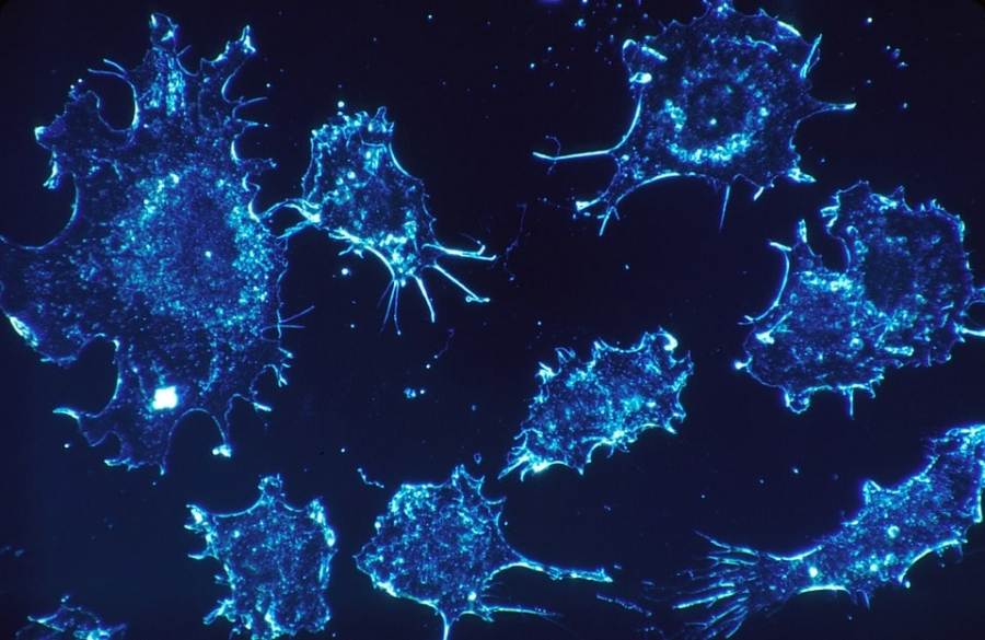 Rapid spread of cancer cells to distant organs, creates devastating effects.